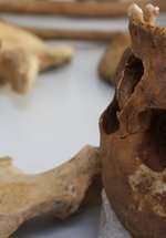 Osteoarchaeology: the study of human remains